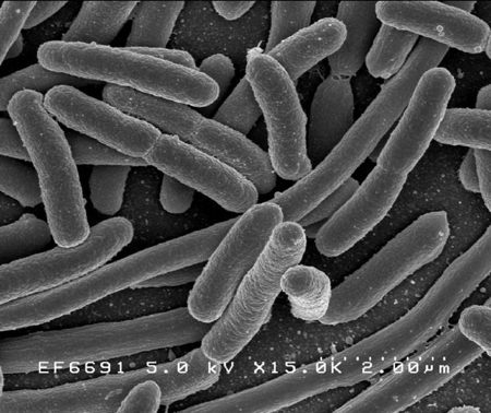 escherichia coli batterio