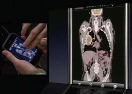 iphone software anatomia