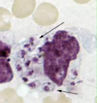 Leishmania donovani